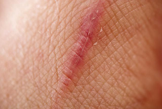 What Scar Tissue Is and 4 Ways to Manage It