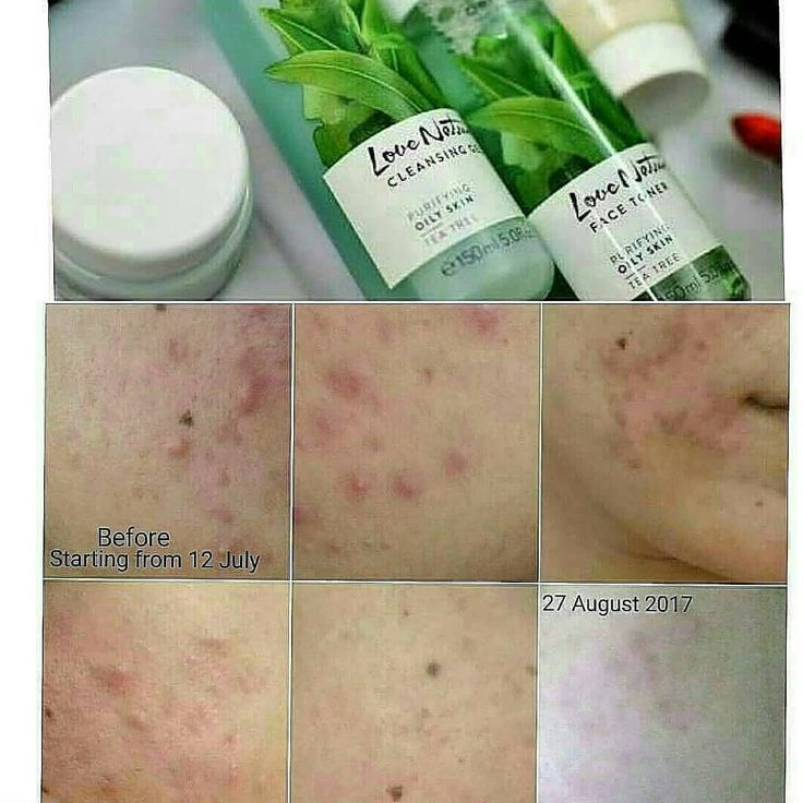 Oriflame By Yani Dasal In 2020 Acne Treatment Oily Skin
