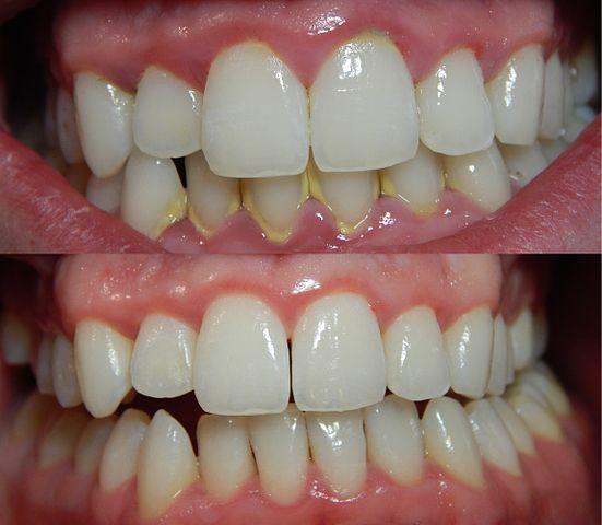 Une plaque dentaire minéralisée de couleur jaune ou brun sur les dents est appelé tartre. La quantité de tartre s'accumule et si vous ne le retirez pas,
