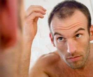 Top Reasons For Hair Loss