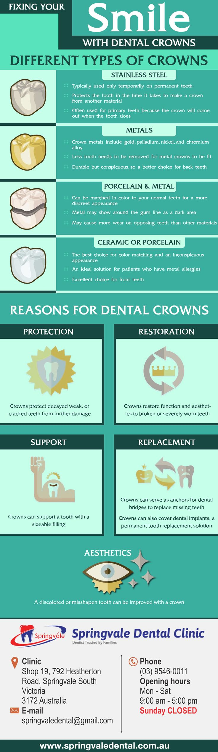Which #Dental_Crown or Tooth Cap is right for you? Find out in this infographic, different type of Dental Crowns. To fix your smile with dental crowns visit Springvale Dental Clinic. http://bit.ly/1RxlFZL