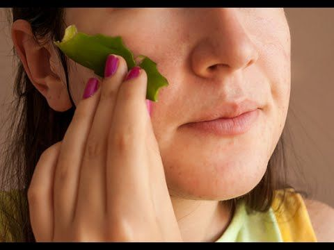 How To Use Aloe Vera For Face - Treatment For Acne ,Get Rid Of Whitehead...