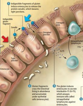 This is how Gluten causes leaky guts in people with Celiac Disease - find out why here http://scdlifestyle.com/2012/02/how-gluten-causes-celiac-disease/