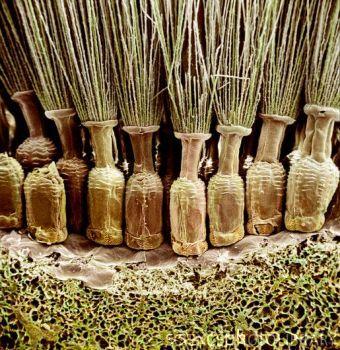 Dandelion flower head, SEM.  Like little rows of bottles!!!