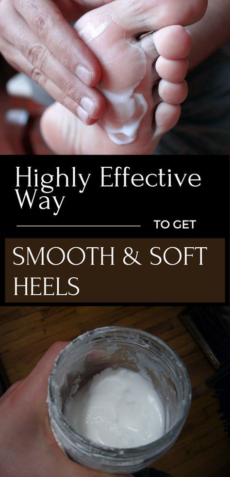 Highly Effective Way to get Smooth and Soft Heels