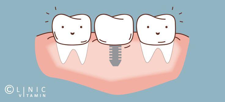 [Miért jobb a lézeres implantáció?] --------------------------------------------- 🍏 Hiányzó fogad pótlására a legkíméletesebb és legmodernebb módszer a fogászati implantáció. Az implantátum behelyezésével a komfortérzeted is javul, hiszen segítségével arcod visszanyeri eredeti formáját. 👴👵 🔹Tudj meg többet az implantációról itt!👉 http://www.lezerfogklinika.hu/fogaszati-kezele…/implantacio/ #implantáció #lézer #fogászat #fogklinika #cvitaminclinic #szeged