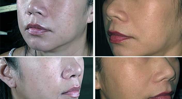 Biotin Skin Results Before And After Pictures Http Www