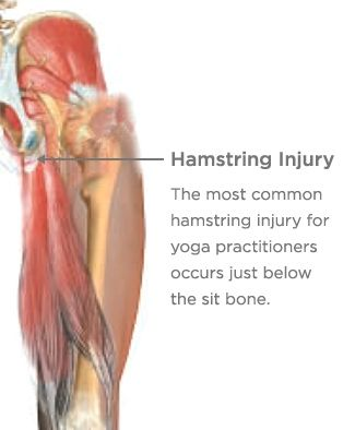 Yoga students are vulnerable to overstretching the hamstring muscle and tearing the connecting tendon.