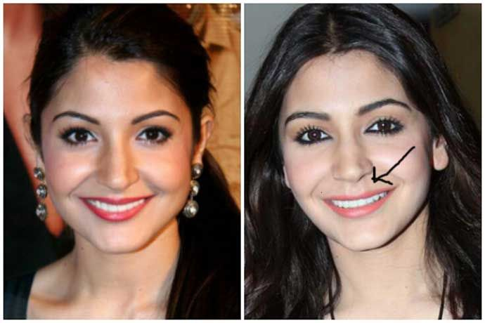 Anushka-Sharma-Plastic-Surgery-Before-and-After.jpg ...