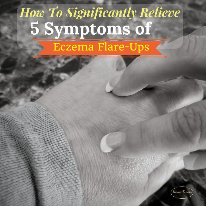 how to significantly relieve 5 symptoms of eczema flare up, skin, scratching, itching, redness, flaky, dry, hands, arms, beauty, tips, allergies, kids, adults, teens, how to stop that it, relieve the itch, dryness, roughness, scaling, and red/irritated patches