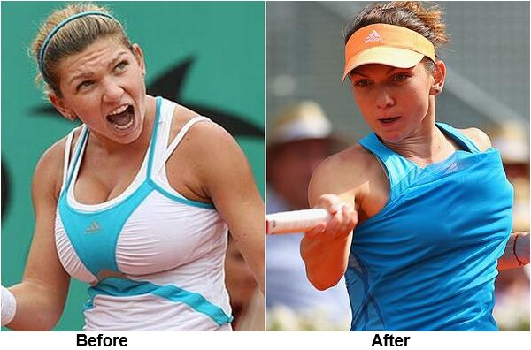What can transform a good tennis player into a world class competitor literally overnight? More practice, performance enhancing drugs, better training, a new coach? No, none of these, at least not overnight! How about breast reduction surgery??  Click the image to read more..