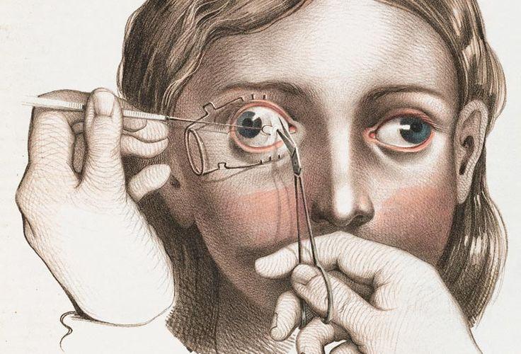 Disturbing Vintage Medical Illustrations Richard-Barnett 14