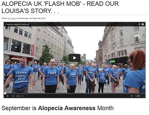 Alopecia UK 'Flash Mob' - Read our Louisa's story. . . - See more at: http://www.simplywigs.co.uk/catalogue/ladies-wigs/alopecia-uk-flash-mob/article.html#sthash.fI2w6zAT.dpuf