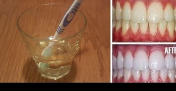 Natural Teeth Whitening With Just One Ingredient! - View article: http://ilyke.com/u6885p5585/natural-teeth-whitening-with-just-one-ingredient/70375 @ilykenet