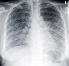 pneumocystis pneumonia - Google Search