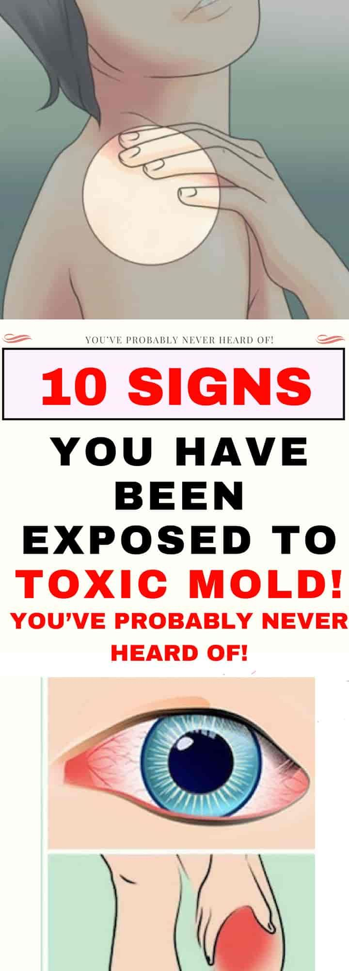 How do you detox from mold exposure