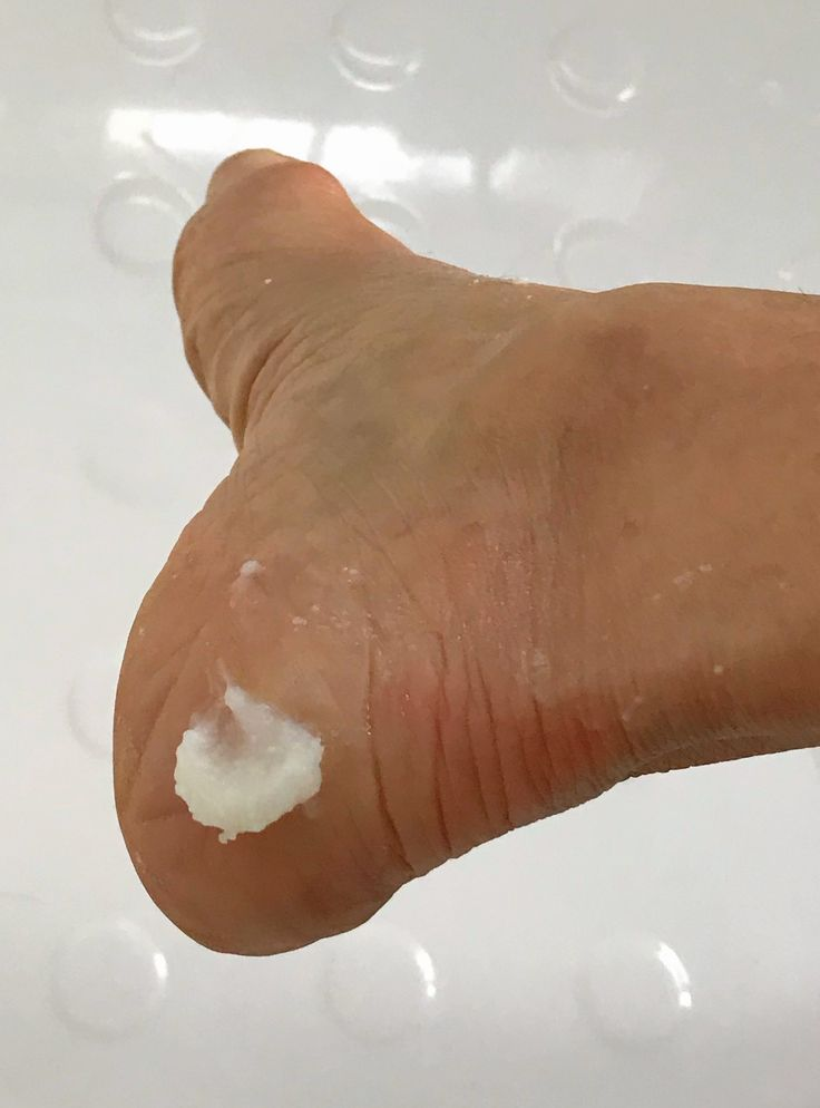 Simple ingredients in Beautycounter's Baby Balm soothes and heals dry cracked heels.
