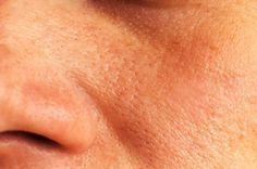 Remèdes maison naturels pour refermer les pores ouverts