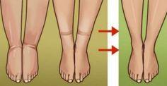 Καταπολεμήστε την κατακράτηση υγρών και μειώστε το βάρος σας