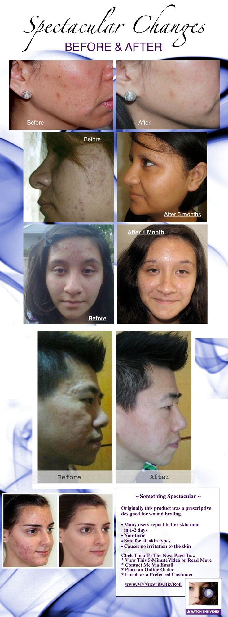 Acne Solutions ~ Contact Mary at www.MyNucerity.Biz/Roll