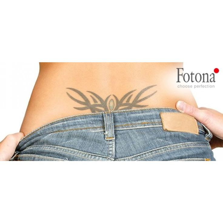 8 best tattoo removal images on pinterest tattoo removal for Tattoo removal in louisiana