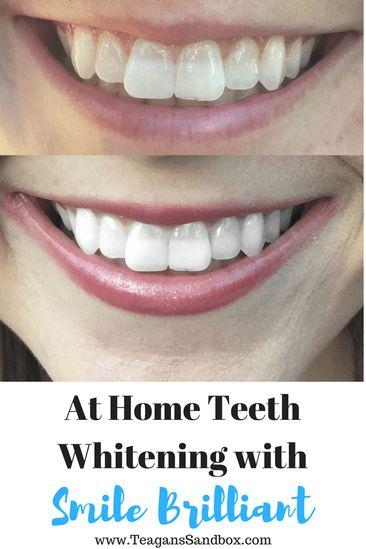home teeth whitening, smile brilliant, pregnancy, crest whitestrips,