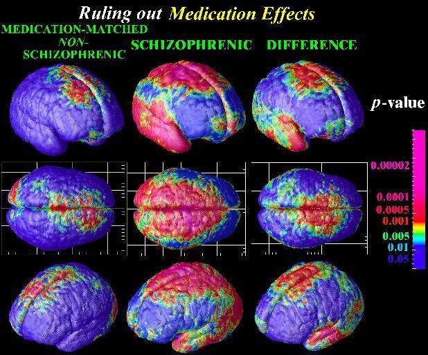 Schizophrenia.com - Schizophrenia Fact and Schizophrenia Statistics