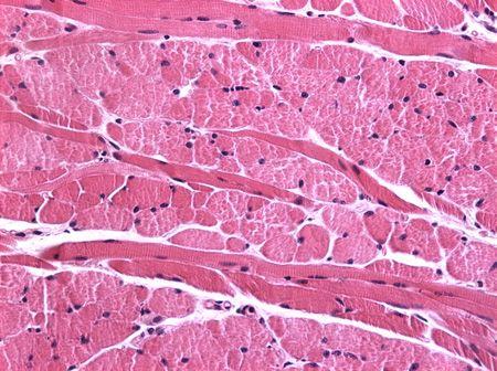 Tecido Muscular,este tipo de tecido realiza grande parte da movimentação corporal em conjunto com o tecido ósseo. Pode romper-se e possui algum teor de elasticidade que ajuda na movimentação.Pode produzir ácido lático e armazená-lo,que pode causar dores musculares. E por fim é possível sentir a pulsação cardíaca.