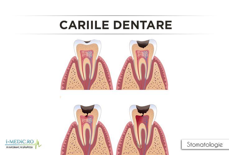 Cariile apar ca urmare a degradarii dentare, si se manifesta prin distrugerea struturii dintilor, atat la nivelul smaltului, cat si a dentinei.Degradarea dentara apare in momentul consumarii carbohidratilor (zaharuri si amidon) precum paine, cereale, lapte, bauturi carbogazoase, prajituri si bomboane. http://www.i-medic.ro/stomatologie/cariile-dentare