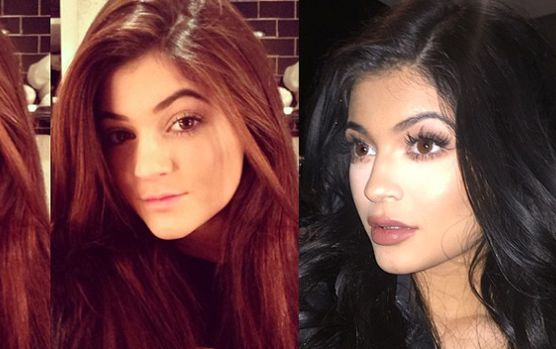 Side swept Going from 15-year-old brunette beauty to raven haired 17-year-old, some fans speculate Kylie also underwent chin reshaping surgery.