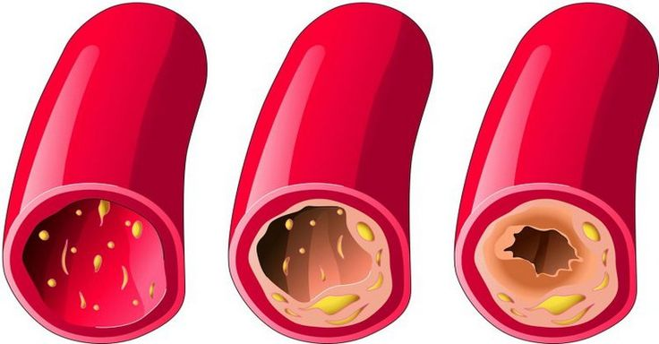 Starať sa o cievy je nutné od mlada, aby ste predišli infarktu či mŕtvici v staršom veku. Tieto potraviny to pre vás spoľahlivo zvládnu.