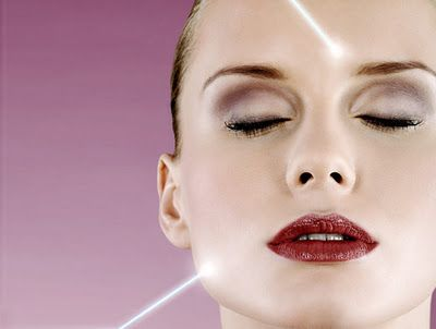 Acne laser treatments