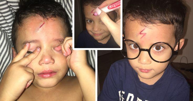 Mom Turns Crying Kid's Cut Into Harry Potter Lighting Bolt, Makes Him Happy Again | Bored Panda