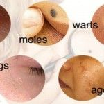 At some point of life, we all can have certain skin issues, like moles, skin tags, clogged pores or skin breakouts. They are all caused by some hormonal imbalance or changes in your lifestyle. Undoubtedly, there are numerous different skin and beauty care...