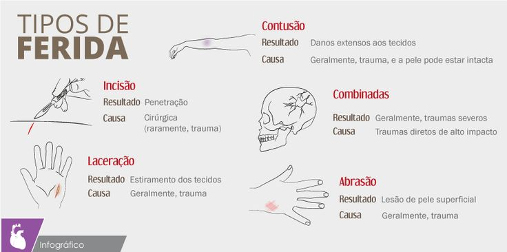 7 best coisas para usar images on pinterest stuff stuff medicine 7 best coisas para usar images on pinterest stuff stuff medicine and trauma fandeluxe Image collections