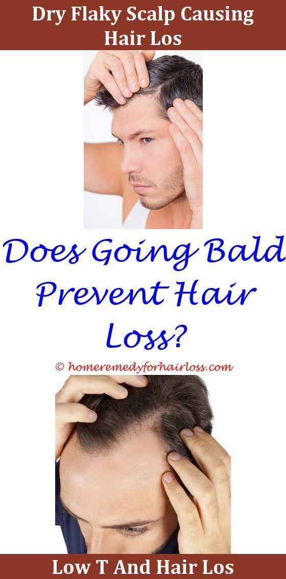 Hair Restoration Hair Loss Hair Loss Treatment And Chemotherapy