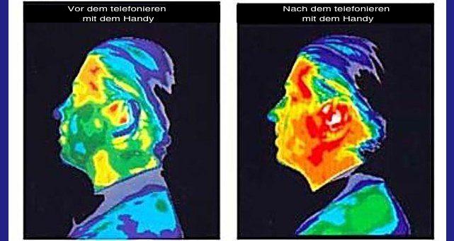 """Entstörung von Handys, DECT-Telefonen und anderem Mobilfunk – wissenschaftliche Veröffentlichungen und Studien zeigen die Notwendigkeit Nachgewiesene Auswirkungen von Bestrahlung durch gepulste Mikrowellen: Schlafstörungen, emotionale Unausgeglichenheit """"Gedrollenbildung"""" – Verklumpen der Blutkörperchen (führt u.a. zur Sauerstoffunterversorgung) Störung der Kommunikation zwischen linker und rechter Gehirnhemisphäre -> u.a. Konzentrationsprobleme, Lernstörungen Aufbrechen der…"""