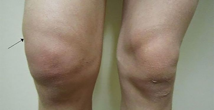 Voici une astuce naturelle pour prévenir et soulager la rétention d'eau au niveau des genoux.