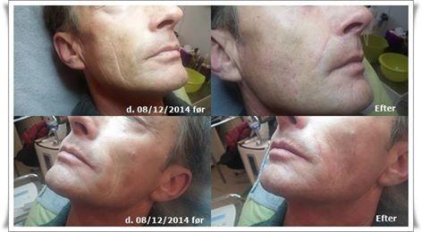 Er ud træ af sur mund og andre linjer? Vi udfører Mesotherapy injection med hyaluronsyre. http://cliniquedeprairie.com/page4.php www.cliniquedeprairie.com
