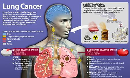 Many causes of lung cancer