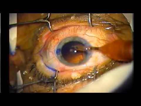 Quick and Easy Way to Improve Your Eyesight: Cataract Surgery