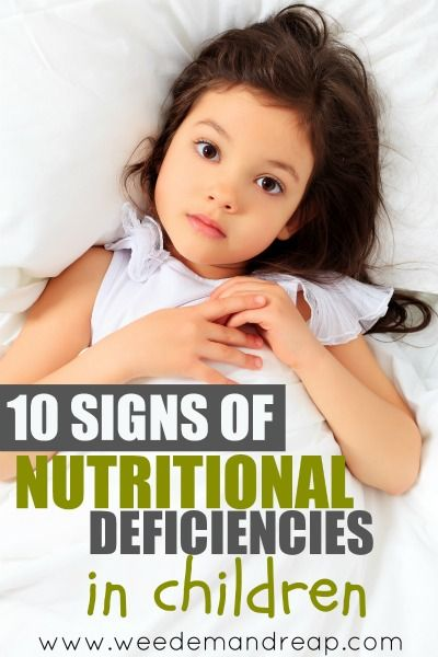 10 Signs of Nutritional Deficiencies in Children - Weed'em  Reap