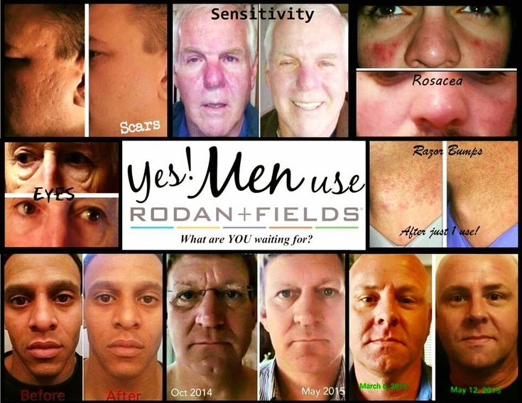 Men use Rodan and Fields too! Everyone has to wash their face, you might as well use the best! #staceecaskey Stacee.caskey@yahoo.com