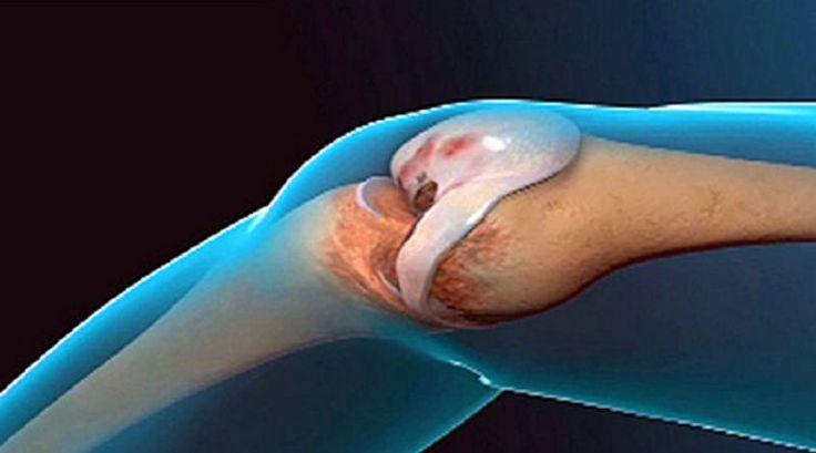 Lekári žasnú: Tento recept obnovuje kĺby a kolená!