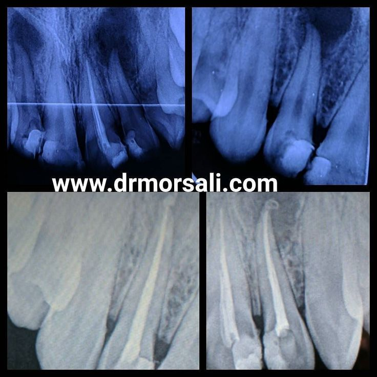 #Bioceramic #endodontic #sealer cases.  # 12 # 22  chronic apical periodontitis with apica mild root resorption.