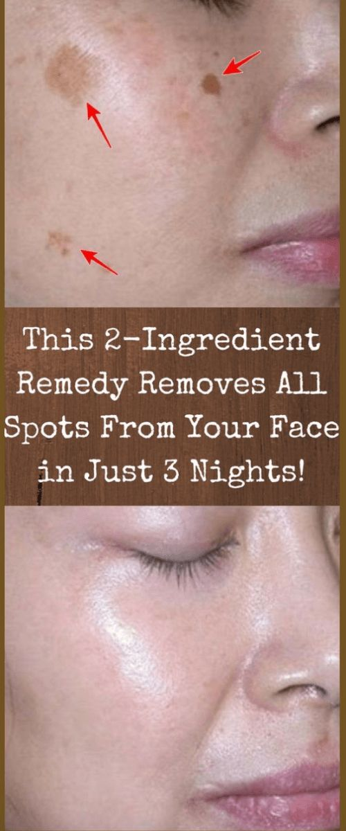 In today's article, we are going to present you several recipes for the preparation of remedies that will remove the spots from your face. For the preparation, you will need completely natural ingr…