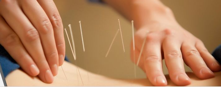"Besides providing patients with treatment through different acupuncture procedures, we also provide treatment through magnetic therapy"". Click here for more queries."