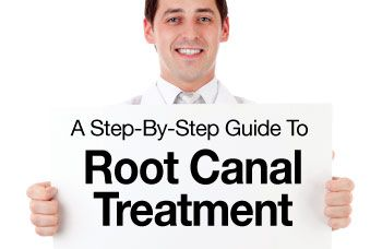 Root canal treatment step by step.