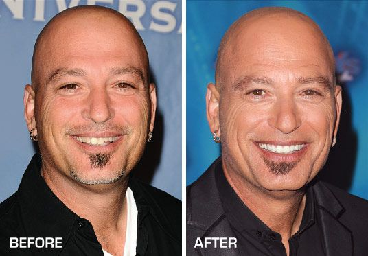 5 Celebrities Before After Dental Care Dr Mark Reichman Inc