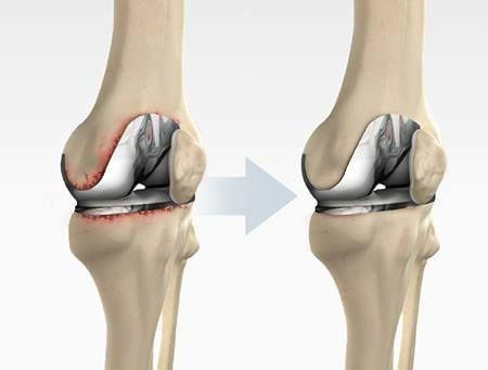 ¿Cómo saber si necesito una cirugía de reemplazo #articular de #rodilla? A través de una exploración física y #radiografías apropiadas, determinaremos si usted es candidato a una cirugía de este tipo. En general cuando el dolor a nivel de cadera o de rodilla es tan intenso y constante que limita el caminar u otras actividades y no se alivia con medicamentos y medidas generales, el paciente se puede beneficiar de estos procedimientos quirúrgicos.